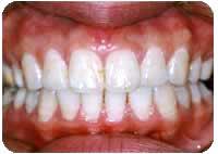 上顎前突(出っ歯) 治療後