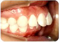 上顎前突(出っ歯) 治療前